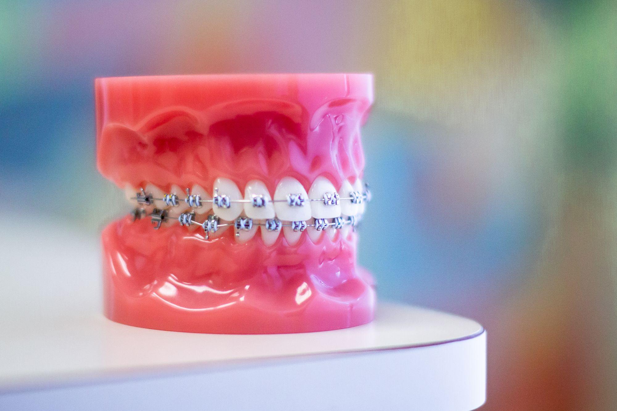 model of metal braces