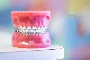 model teeth with metal braces