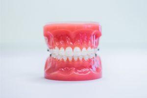 model of clear braces